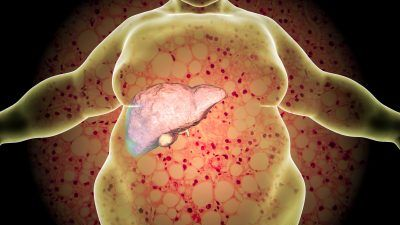 Overweight person with liver issue