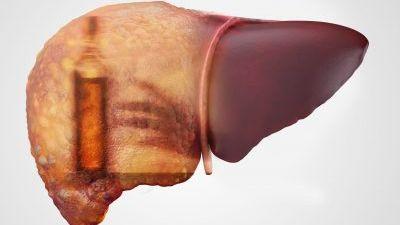 Close up of a liver